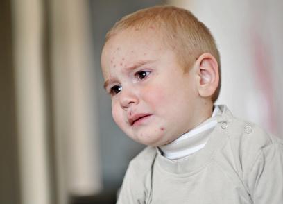 Artikelgebend ist Neurodermitis bei Kindern.