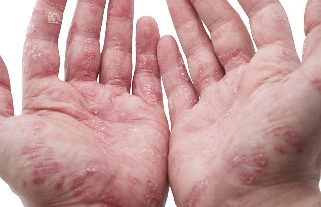 Eine Krankheit, die viele betrifft – die Schuppenflechte